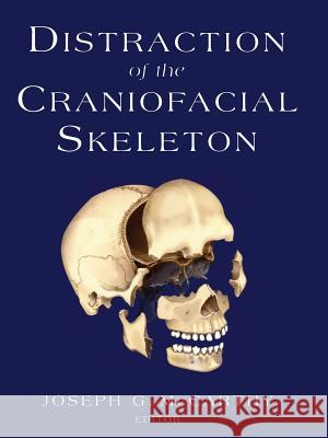 Distraction of the Craniofacial Skeleton Joseph G. McCarthy P. Tessier 9781461274292 Springer