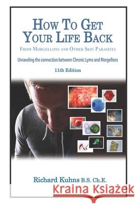 How to Get Your Life Back from Morgellons and Other Skin Parasites Limited Edit MR Richard L. Kuhns MS Jonquelyn Kalmbah 9781475010527