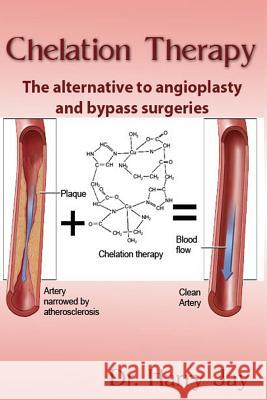 Chelation Therapy: The Alternative to Angioplasty and Bypass Surgeries Dr Harry Jay 9781495349669