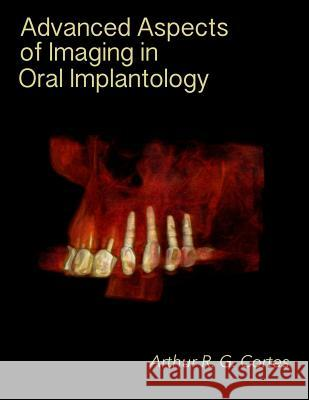 Advanced Aspects of Imaging in Oral Implantology Arthur Rodriguez Gonzalez Cortes 9781515311508
