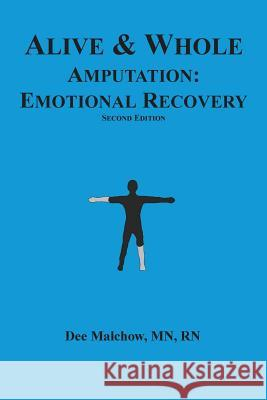 Alive & Whole Amputation: Emotional Recovery Rn Dee Malcho 9781539012344