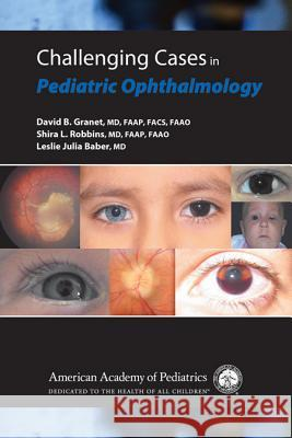Challenging Cases in Pediatric Ophthalmology American Academy of Pediatrics 9781581103052