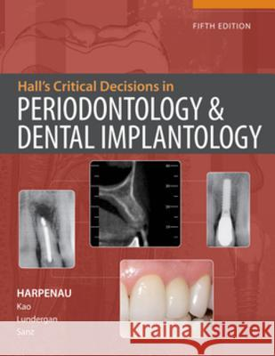 Hall's Critical Decisions in Periodontology Harpenau 9781607950462