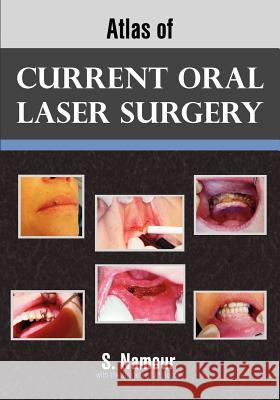 Atlas of Current Oral Laser Surgery S Namour 9781612330280