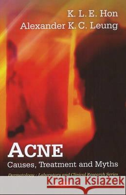 Acne : Causes, Treatment & Myths Leung, Alexander K. C.|||Hon, K. I. E. 9781616682583