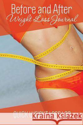 Before and After Weight Loss Journal : Quick Weight Loss Log Speedy Publishing LLC   9781631870095 Speedy Publishing LLC