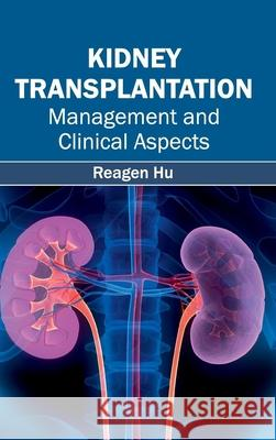 Kidney Transplantation: Management and Clinical Aspects Reagen Hu 9781632412751