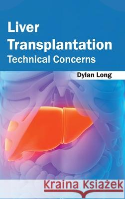 Liver Transplantation: Technical Concerns Dylan Long 9781632422583