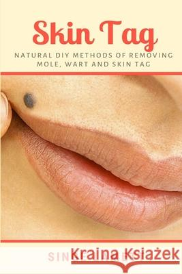 Skin Tag: Natural DIY Methods of removing Mole, Wart and Skin Tag Singe Lamett 9781794811737