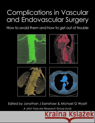 Complications in Vascular & Endovascular Surgery : How to Avoid Them & How to Get Out of Trouble Earnshaw, Jonothan J.|||Wyatt, Michael G. 9781903378809