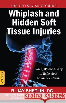 Whiplash and Hidden Soft Tissue Injuries: When, Where and Why to Refer Auto Accident Patients Dr R. Jay Shetlin Esq Bryan Larson Dr Jeffrey a. States 9781937506735
