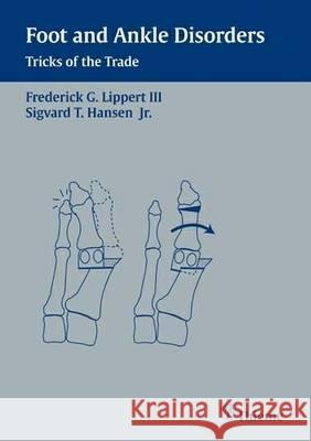 Foot and Ankle Disorders: Tricks of the Trade  9783131355119