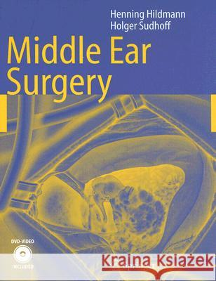 Middle Ear Surgery [With DVD] Henning Hildmann Holger Sudhoff Manuel Bernal-Sprekelsen 9783540222019