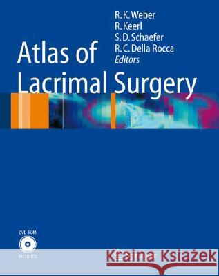 Atlas of Lacrimal Surgery [With DVD-ROM] R. K. Weber R. Keerl R. C. Dell 9783540262558 Springer