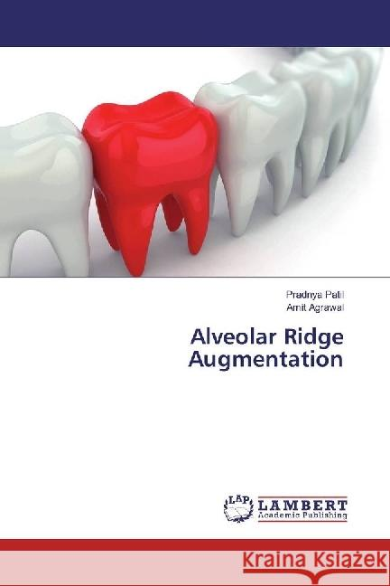 Alveolar Ridge Augmentation Patil, Pradnya; Agrawal, Amit 9783659637674 LAP Lambert Academic Publishing