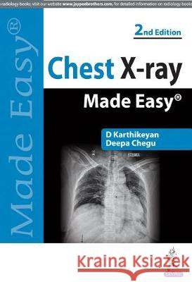 Chest X-Ray Made Easy D. Karthikeyan 9789350255636