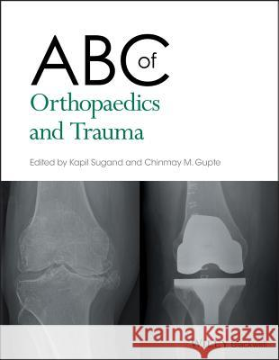 ABC of Orthopaedics and Trauma Kapil Sugand Chinmay Gupte 9781118561225 Wiley-Blackwell - książka