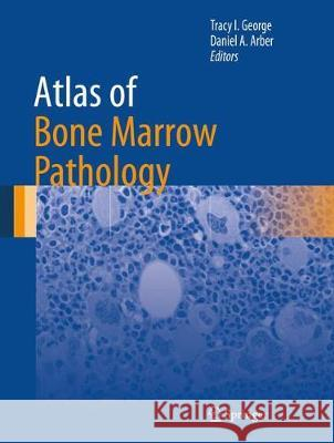 Atlas of Bone Marrow Pathology Tracy I. George Daniel A. Arber 9781493974672 Springer - książka
