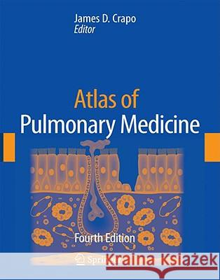 Atlas of Pulmonary Medicine James D. Crapo W. Langenfeld M. Looney 9781573402934 CMG - książka