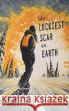 The Luckiest Scar on Earth Ana Maria Spagna 9781937226664 Torrey House Press